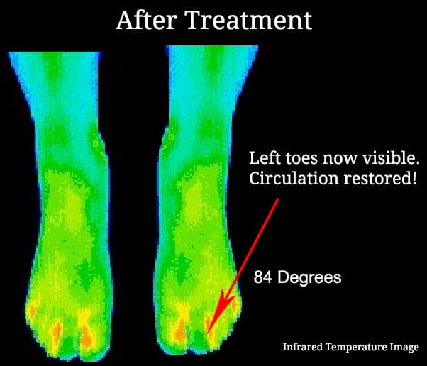 Infared Heat map of a foot after ReBuilder treatment